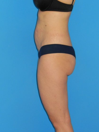 Tummy Tuck Before & After Patient #2172