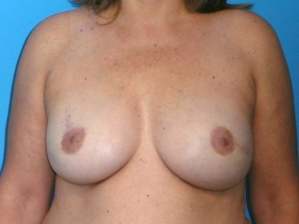 Breast Reconstruction Before & After Patient #1872